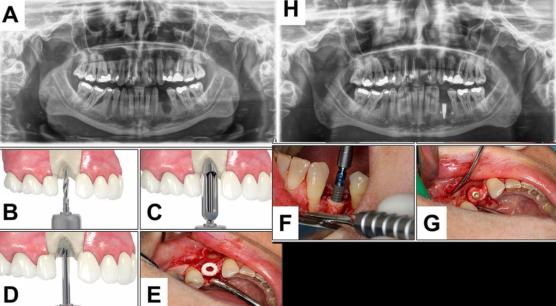Vertical bone ring guided bone regeneration graft case photos.