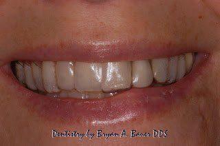 Image of essix temporary retainer dental implant