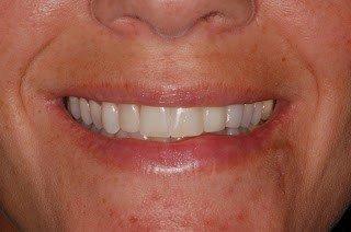 Image final dental implant crown