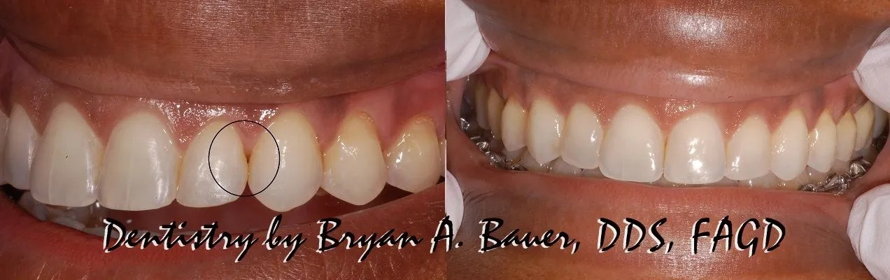 Closing a black triangle with composite and Bioclear.