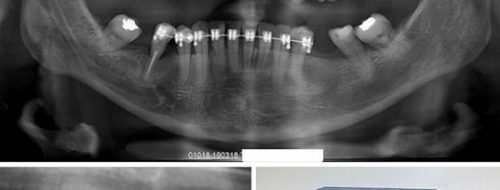 implant xray bad angle