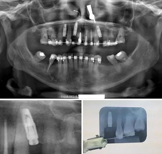 Angle of x-ray can be deceiving on where the dental implant is.