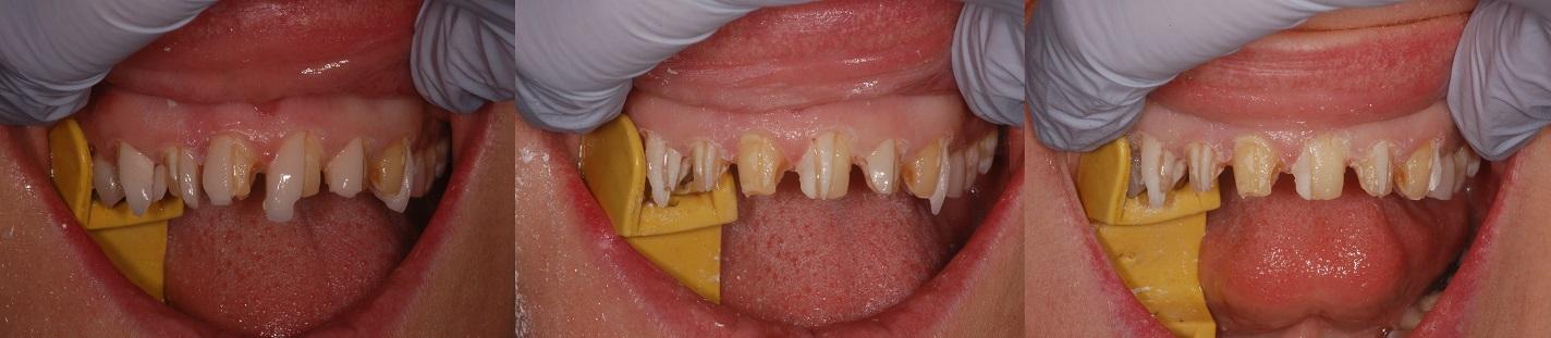 Zirconia bonding of anterior teeth