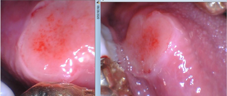 Oral cancer lesion on the side of the tongue