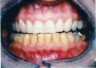 teeth_whitening-results1