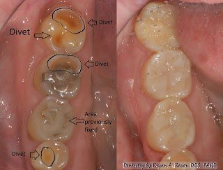 Image of before and after dental erosion treatment.