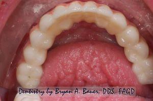Implant supported zirconia bridge