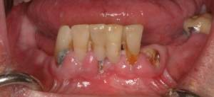 Implant supported zirconia bridge before photo