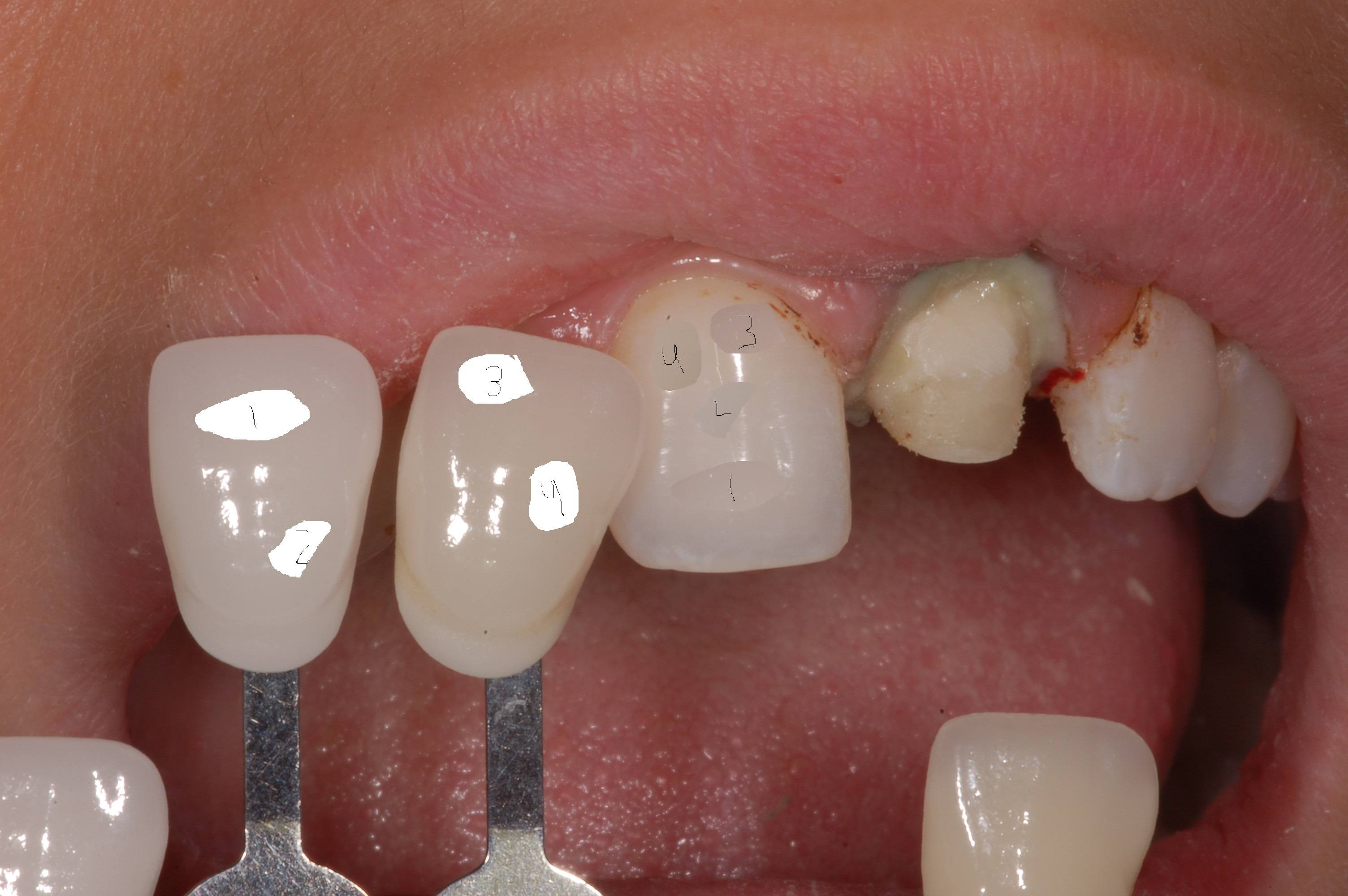 image about Tooth Shade Chart Printable referred to as Dental coloration conclusion - How toward decide on the instantly coloration