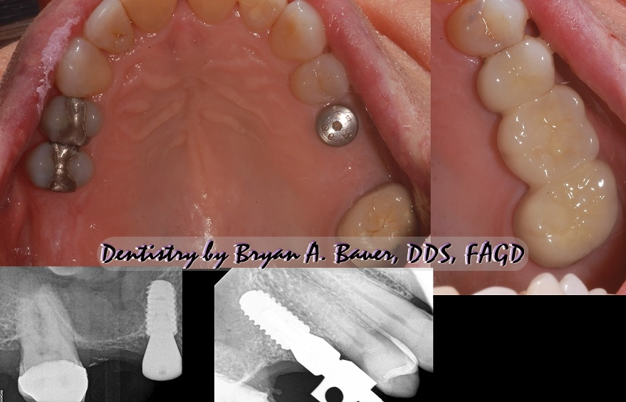 Photos of a tooth implant supported prosthesis or TISP