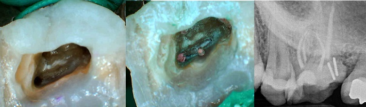 MB2 of the upper first molar