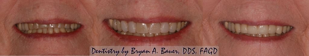 Before and after image of natural looking dental veneers