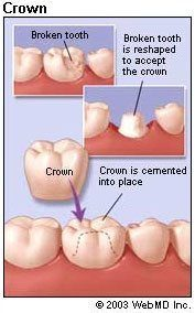 Graphic showing the dental crown steps
