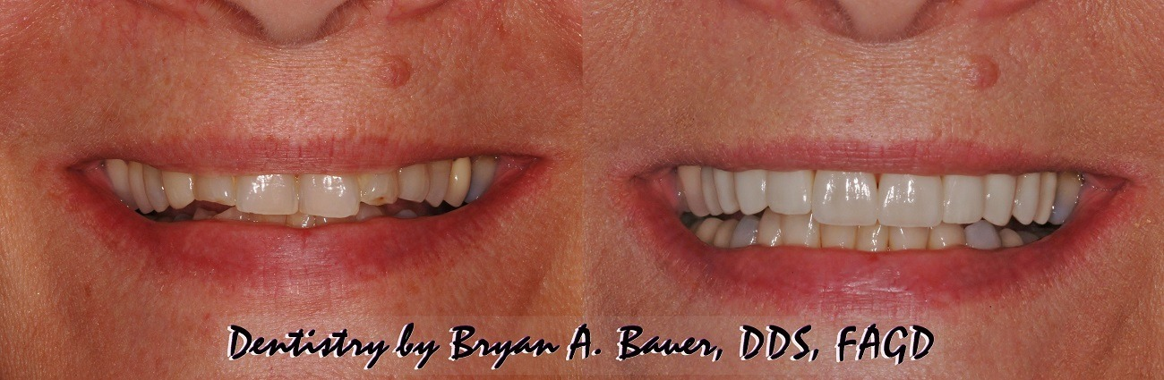 Image of 10 life like dental veneers