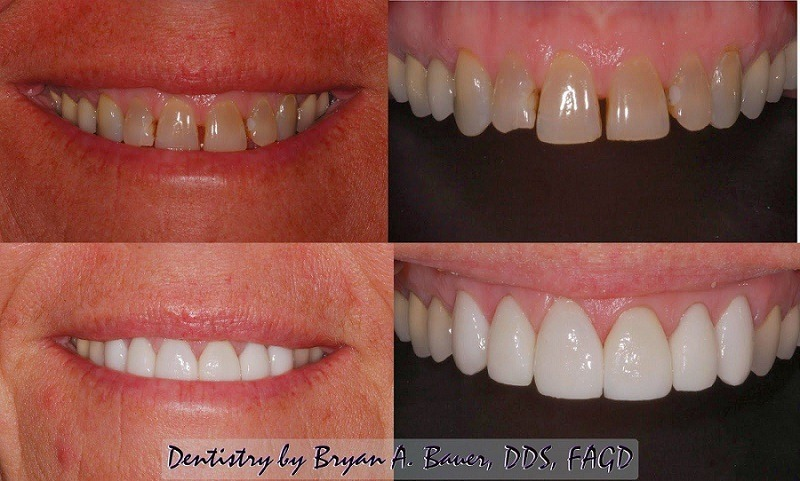 Image of porcelain dental veneers