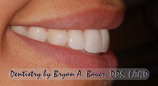 Lateral image of some wheaton dental veneers