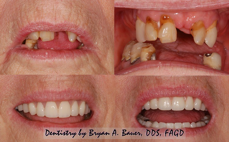 Implant supported dentures denture on dental implants bauer smiles image of implant supported dentures solutioingenieria Image collections
