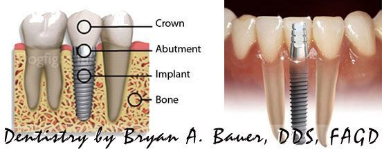 Why does a dental implant cost so much