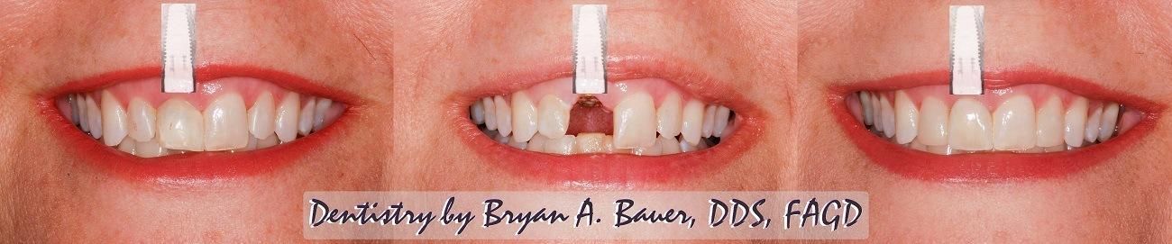 wheaton dental implant