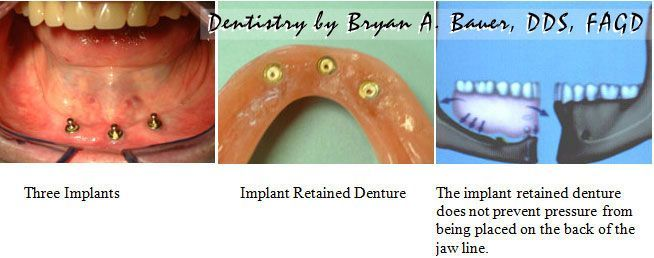 implant retained denture on dental implants