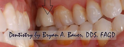 zirconia dental crown