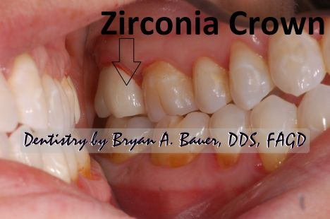 A milled zirconia dental crown.