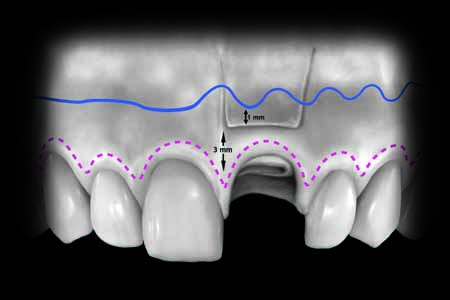 This is an example of the outline of an esthetic buccal flap.