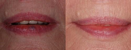Cost lip hemangioma