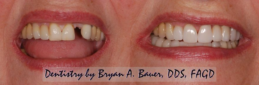 dental bridge before and after