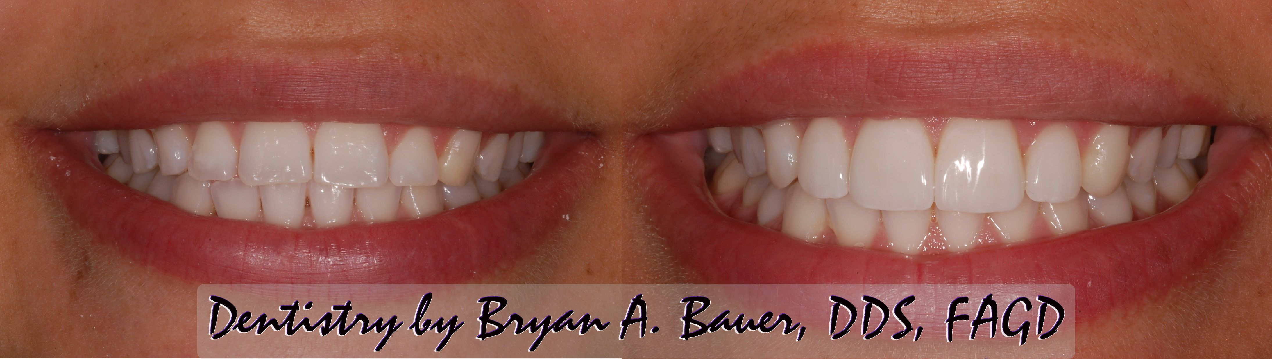 Dental veneers before and after - Wheaton, IL cosmetic dentist