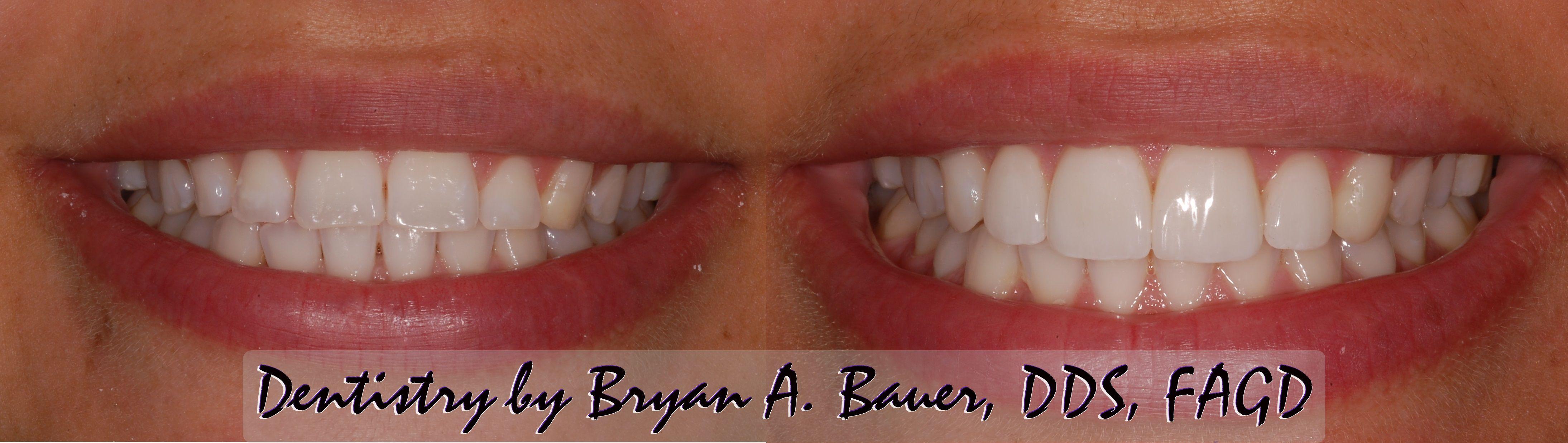 Cosmetic Dentistry Minimal Prep Dental Veneers