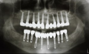 Tatum dental implant case