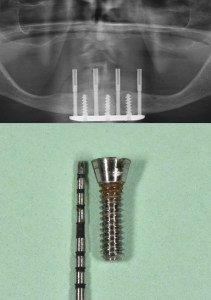 Transmandibular dental implant
