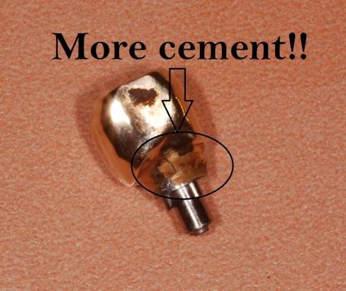 dental implant cement