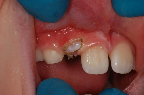 impacted canine tooth