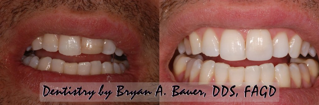 anterior composite fixed