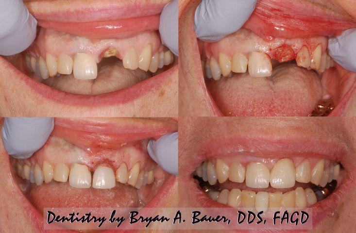 cheap alternative to dental implant