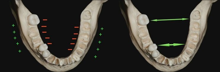 Image on bone growth mandible