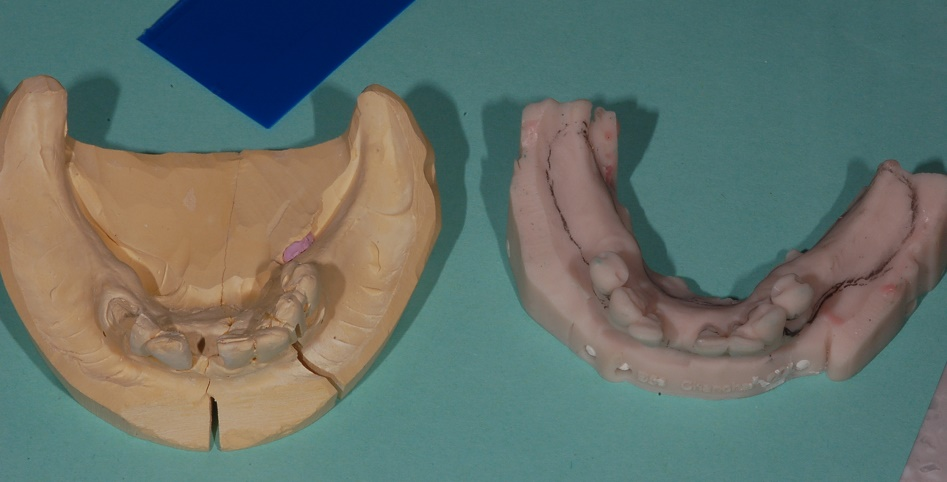 Digital dentures - What is a digital denture? - Bauer Smiles