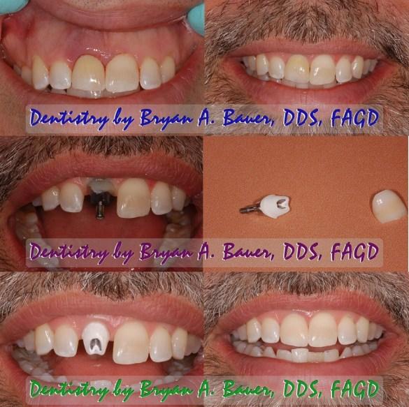 ICAP v ICEAM for dental implants