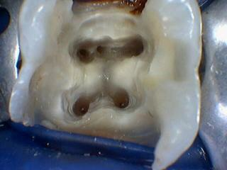 mid mesial canal
