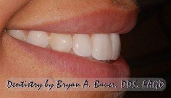 Dental veneer cracked fix a cracked dental veneer bauer smiles your wheaton cosmetic dentist explains veneers solutioingenieria Gallery
