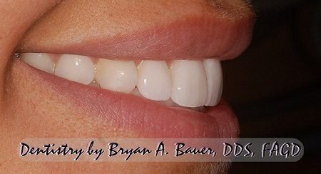 wheaton dental veneers side view