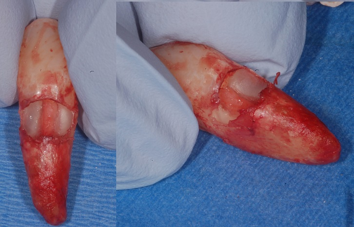 Iamge of the pericanalar resorption-resistant sheet of a canine with external cervical resorption.