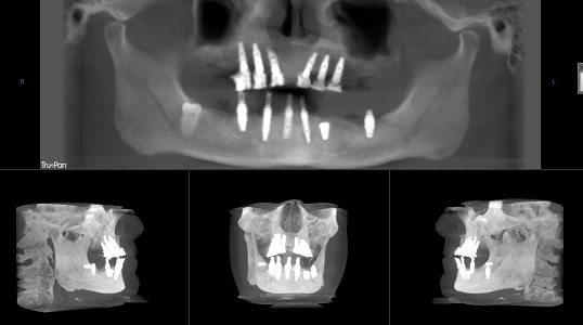 Board certified implant dentist