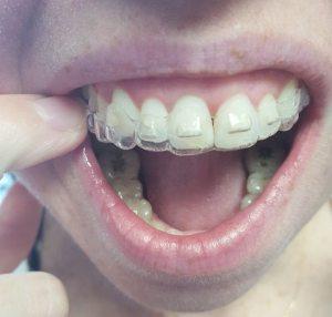 Wheaton Orthodontics