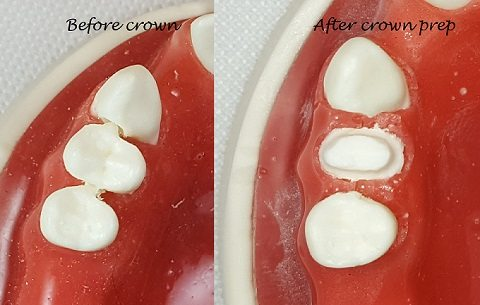 tooth hurts after dental crown