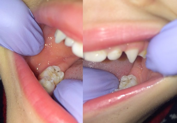 Photo of silver diamine fluoride staining on back molars