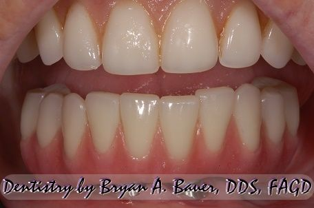 Image for nano composite all on 4 teeth.