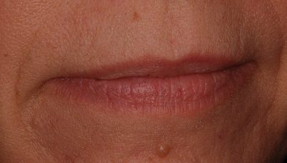 Image of second venous lake treatment